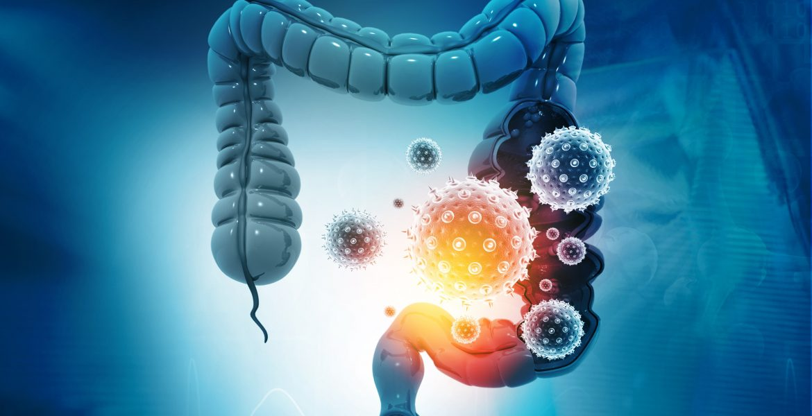 CAUSES OF LEAKY GUT SYNDROME-min